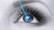 Ποιοι δεν μπορούν να κάνουν laser στα μάτια ?
